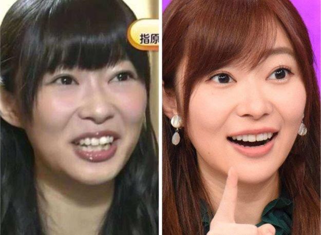 指原莉乃の顔が変わった?鼻・口・歯が違う?画像で徹底比較