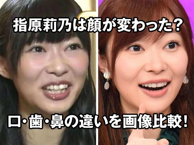 指原莉乃の顔が変わった?口・歯・鼻の違いを画像で徹底比較